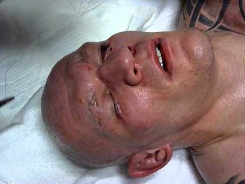 Krzysztof Soszynski getting stitched up after UFC 122