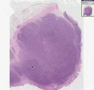 Histopathology Colon--Burkitt lymphoma