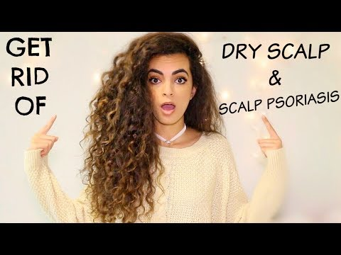 HOW TO: GET RID OF DRY SCALP/PSORIASIS