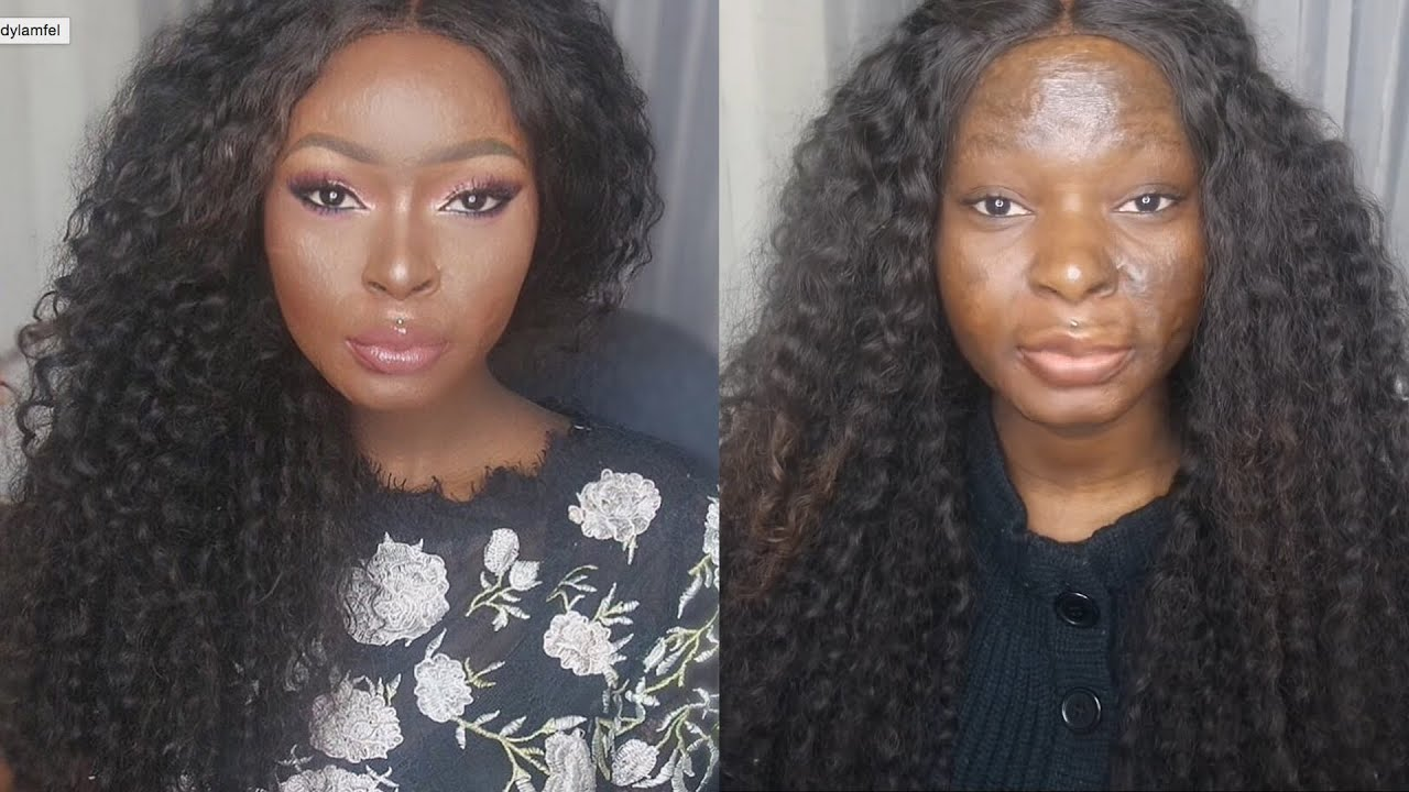 This Burn Survivor And Makeup Artist Turns Tragedy Into ...