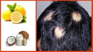 4 दिन में बालो का झड़ना बिल्कुल बन्द - How to Stop Hair Loss and Promote Hair Regrowth