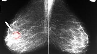 La mammographie après 50 ans est-elle indispensable  ?