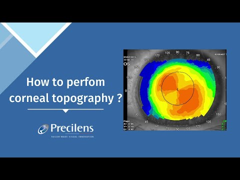 How To Perfom Corneal Topography ?