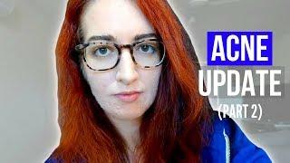 UPDATE TO MY ACNE UPDATE... That's So Weird... | Jess Bunty Vlog