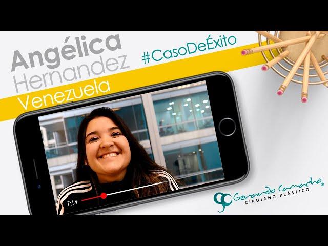 Testimonios Cirugía Plástica paciente de Venezuela - Lipolisis Alta  Definición  Bogotá - Colombia