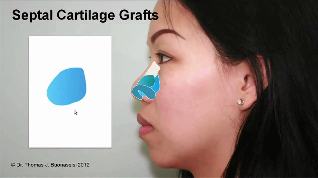 Asian picture rhinoplasty