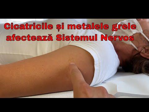 articulațiilor și tratamentul lor pentru osteochondroză boala ligamentului cotului