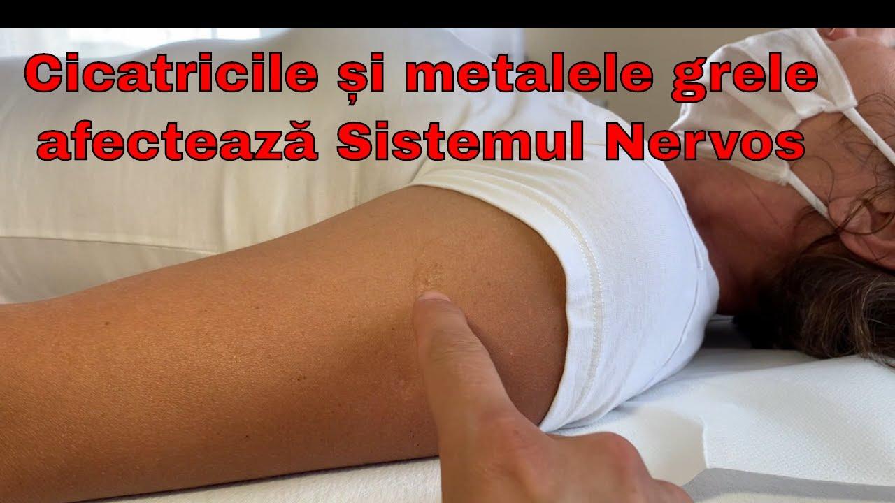 hemlock în tratamentul artrozei)