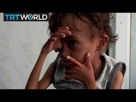 The War in Yemen: UN: Saudi blockade threatens to starve millions