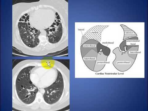 Radiology Rounds 06 Normal CT segmental Lung Anatomy - YouTube
