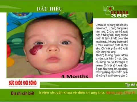 Bản Tin Sức Khỏe 365 Ngày - Số 338 : Bệnh u máu