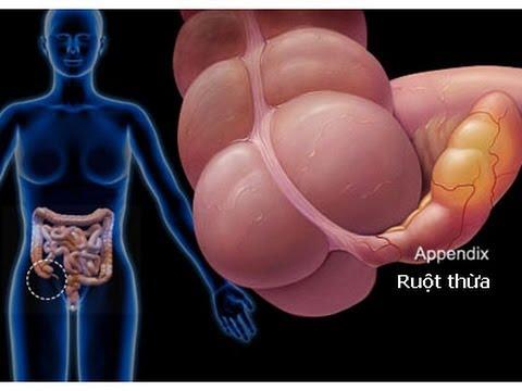 Viêm ruột thừa: Có thể nguy hiểm đến tính mạng.
