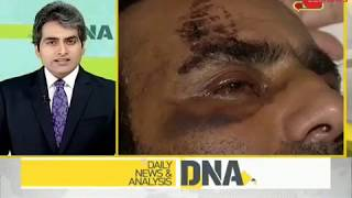 DNA: Police officer injured by stone-pelters takes the high road, forgives them