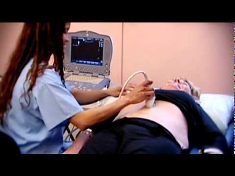 Abdominal Aortic Aneurysm  - Health Screening - Life Line Screening