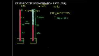ESR made easy - Erythrocyte Sedimentation Rate - Full Blood Count Masterclass series