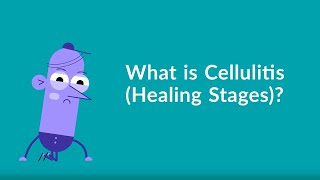 Cellulitis Healing Stages