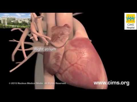 Heart Failure Overview - Detailed (Gujarati) - CIMS Hospital