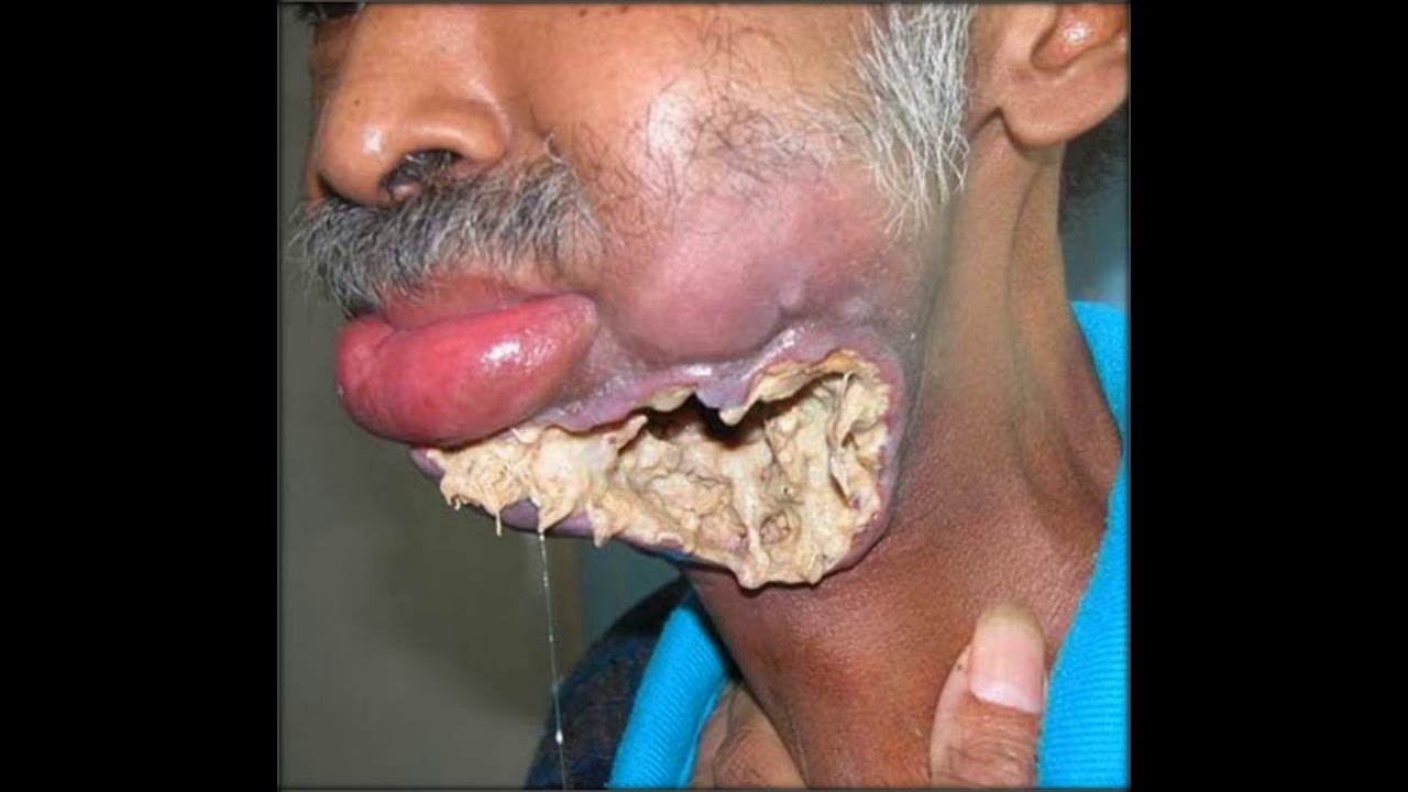 dentist takes on their most disgusting case yet a mouth