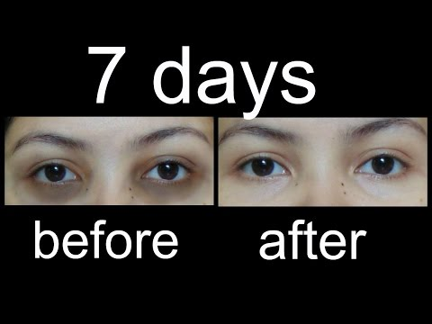 Magical Home Remedies to remove Undereye Dark Circles
