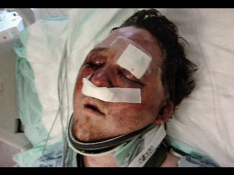 Gay Texas Man, Arron Keahey, Attacked After Using MeetMe App