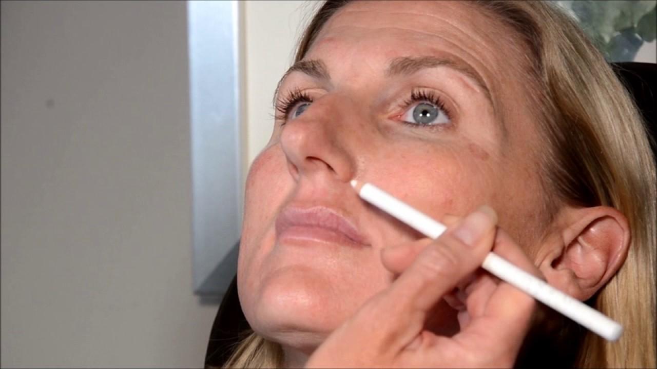Trailer for MedAesthetics Training Botox and dermal filler video