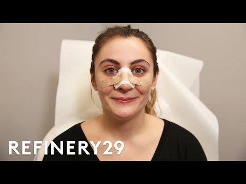 I Got A Nose Job To Match My Identity | Refinery29