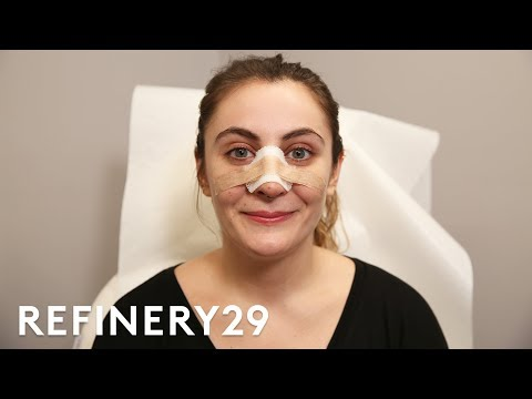 I Got A Nose Job To Match My Identity | Refinery29