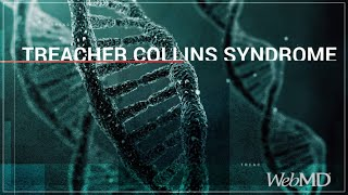 Living with Treacher Collins Syndrome.