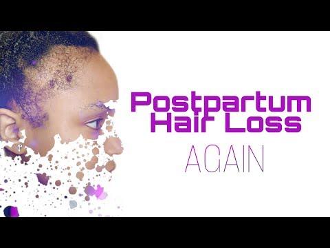 hair-growth-journey:-postpartum-hair-loss-w/locs-{kiesha-arielle}