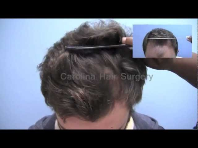 Full FUE Hair Transplant Results | Class 3 hair loss