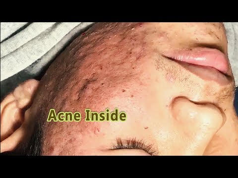 WOW !There're a lot of acne on face to remove video of acne