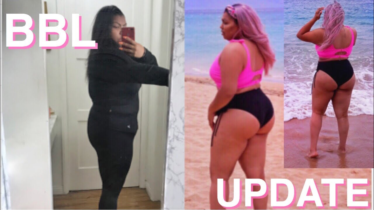 BBL UPDATE | BEFORE & AFTER PICS | 5 & 6 WEEK POST OP