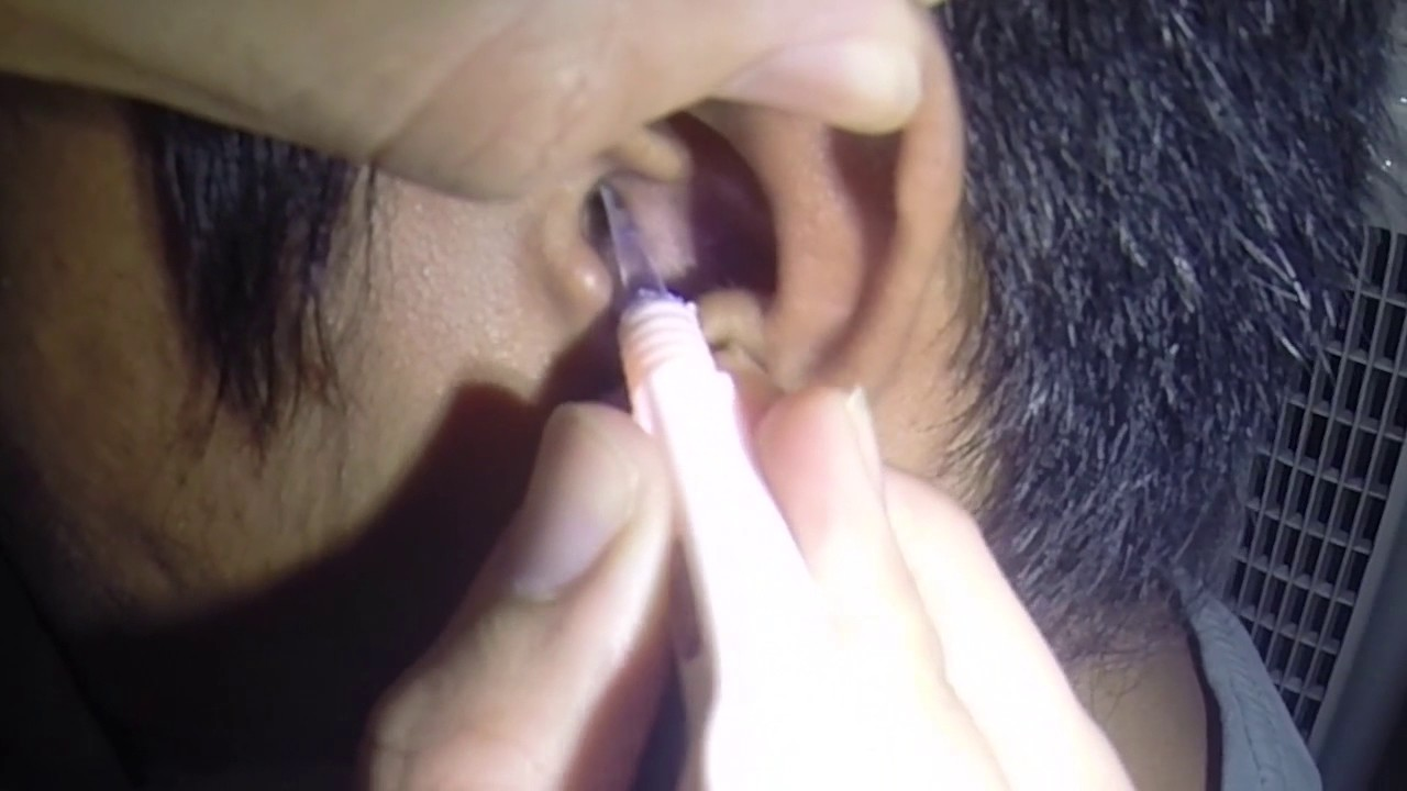 how to get rid of ear wax blockage