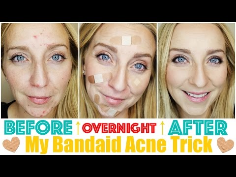 hqdefault - Dry Up Acne Fast