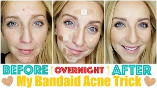 How to Get Rid of Acne Fast & OVERNIGHT with My Bandaid Trick!