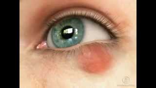 Халязион глаза - причины и симптомы. Сайт WWW.PROGLAZA.RU