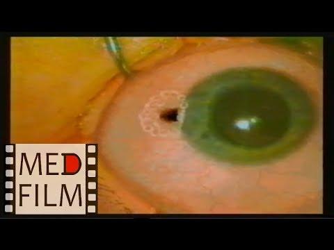 Рак глаза, удаление © Еye cancer, removal