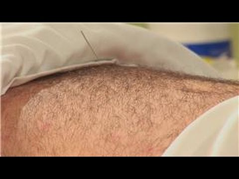 Acupuncture Treatments : Acupuncture for Acid Reflux
