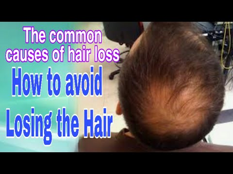 the-common-causes-of-hair-loss-|-how-to-avoid-losing-the-hair