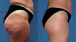 Arrasa Con La Celulitis de las Piernas y Glúteos Rápido / Get Rid of  Cellulite