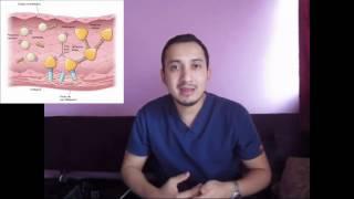 De la embolia y de partes aorta trombosis especificadas no
