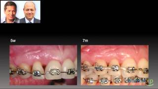 Sequencing of Periodontal Procedures and Orthodontic Treatment_jCD 209-4 Thumbnail