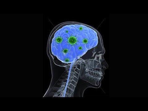 וירוסים וחיידקים במוח הגורמים לאוטיזם, אלצהיימר ושאר מחלות נוירודגנרטיביות