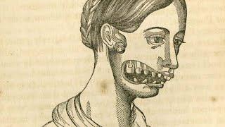 Взрывающиеся Зубы. Феномен 19века, Который так и Не смогли Объяснить