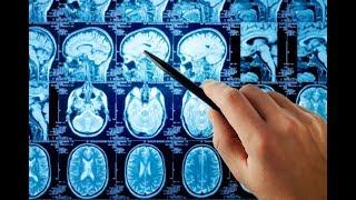 Как размер мозга влияет на интеллект? #DARWINews 7.2.2