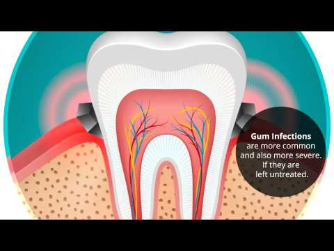 The Effects of Diabetes on Your Teeth