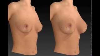 Breast Augmentation - Vectra 3D Visualization Thumbnail