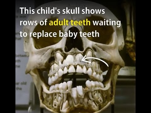 This child's skull shows rows of adult teeth