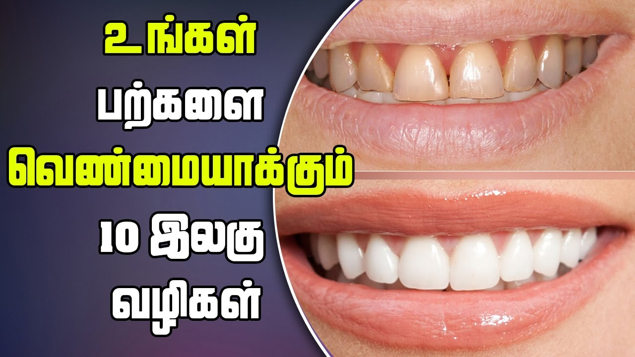Home Remedies For Whitening Teeth In Tamil Youtube