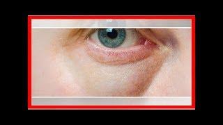 Diferença e de olheiras olhos inchados